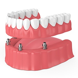 All-On-4 denture on lower arch