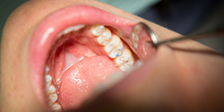 Close up of patient's teeth during dental exam