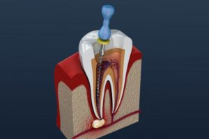 diagram of a root canal