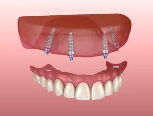 Digital model of implant-retained dentures in Denton.