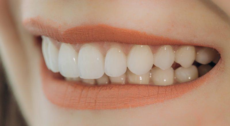 Woman with porcelain veneers in Denton smiling
